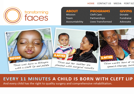 Results from the 2011 Charity Campaign Supported by Transforming Faces Worldwide